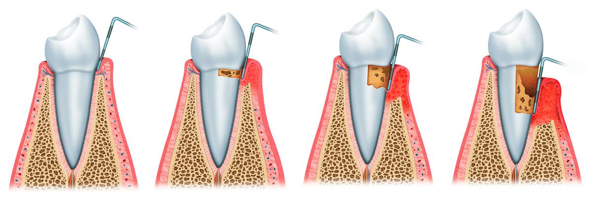 morfes-periodontidas